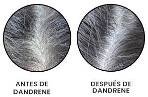 champu dandrene anticaspa resultado