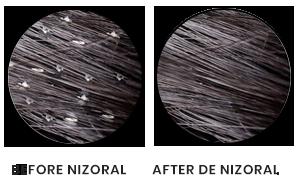 result-nizoral